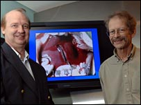 Dr Rutledge Ellis-Behnke, left, and Professor Gerald Schneider stand by monitor showing a transected liver that has been sealed. Picture: Donna Coveney.