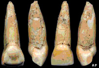 Human tooth   AP Photo/Syrian Dept. of Antiquities and Museums, HO