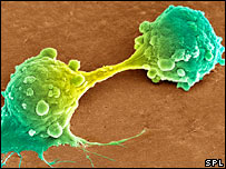 Cancer cells dividing (Steve Gschmeissner/ Science Photo Library)