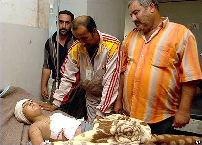 Boy wounded in bombing in Kirkuk, 15 October 2006