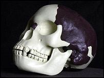Piltdown skull   Image: Natural History Museum/BBC