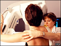 Mammogram (Science Photo Library)