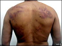 Man's back showing signs of bruises