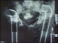 X-ray of corpse showing leg bones replaced with plastic piping