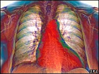 Image of heart and lungs