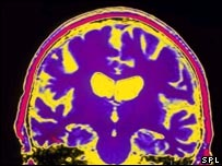 Image of Alzheimer's brain MRI