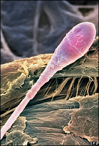 Sperm (Science Photo Library/Steve Gschmeissner)