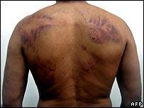 Alleged torture victim in Iraq