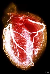Heart (Science Photo Library)
