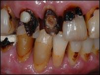 Norman Watt-Roy's teeth