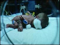A premature baby