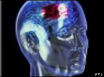 Graphic of head affected by stroke. Photo Credit: Alfred Pasieka/SPL
