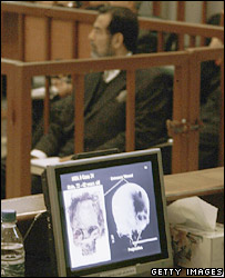 Slide of a skull presented at trial of Saddam Hussein