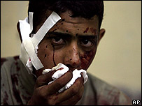 Iraqi youth injured by mortar in Baghdad on Saturday