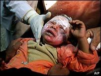 A baby being treated in Baghdad after the Jadiriya bomb