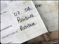 Prueba de VIH que salió positiva