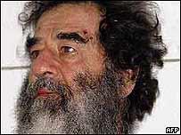 Saddam Hussein barbudo y desaliñado, horas después de haber sido capturado en un hueco en Tikrit