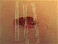 Treated wound