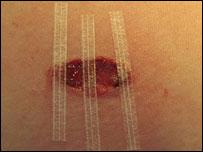 Herida tratada