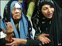 Woman injured in Samarra bombing