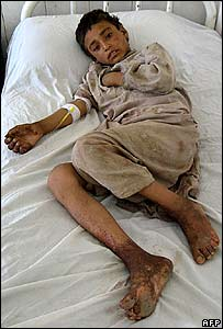 An Afghan boy wounded by an air strike on Gereshk lies in hospital in Lashkar Gah, 30 June 2007