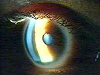 Photo of an eye examination