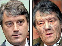 Ukrainian President Viktor Yushchenko before and after the poisoning