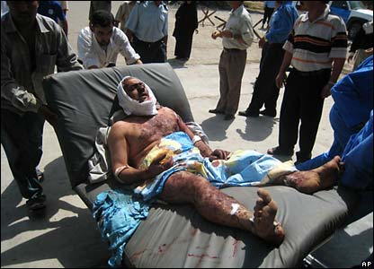 Injured man in hospital in Kirkuk