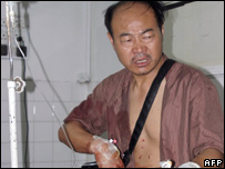 An injured Chinese man undergoes treatment on the outskirts of Peshawar, 08 July 2007
