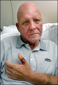 Gareth Pike was stung on his thumb