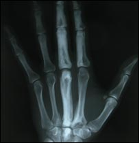 An X-ray of Camilla's hand