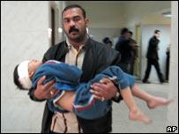Iraquí con un niño herido en brazos