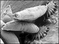 Parasite image [Crown Copyright, Fisheries Research Services, Aberdeen]