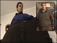 Alistair Preston with a pair of his old trousers and (inset) before surgery