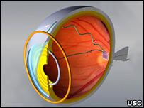 Eyechip (USC)
