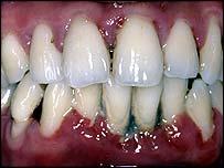 gum disease penyakit gusi