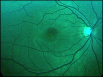 The macular
