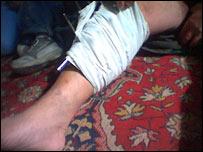 Mazen's leg with machine gun wounds