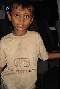Child beggar, Ali