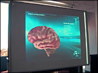A brain seen on a screen