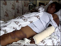 Sekai Holland in hospital. Picture: MDC