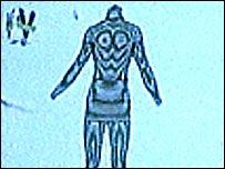 BVI scan