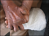 Hands of leper sufferer with missing fingers