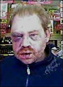 David Atherton with injuries