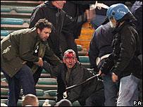Un aficionado con la cara ensangrentada en las gradas del Ol�mpico.