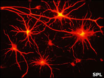 Graphic showing brain cell processes (Image: Science Photo Library)