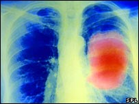 Mesothelioma on lung X-ray