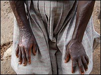 Mildred Akello's burnt scared arms and hands