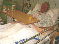 Robert Purdie in hospital