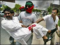 Injured man in Karachi